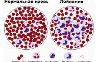 Какой анализ крови показывает онкологию – можно ли ее определить?