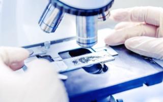Анализ на энтеробиоз (соскоб): как сдавать и сколько делается?