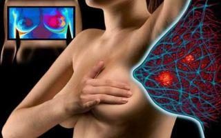 Со скольки лет делают маммографию?