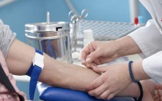 Анализ на спид: сколько делается, подготовка к процедуре