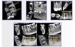 Компьютерная томография зубов (кт): как проходит, для чего делают?