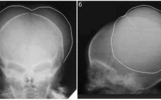 Рентген головы: [показания и противопоказания] 3 раздела