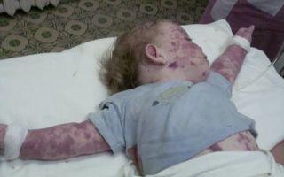 Тромбоцитопения у детей: причины и лечение, симптомы, диагностика