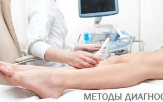 Узи сосудов ног — как делают?