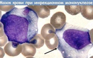 Атипичные лимфоциты в анализе крови: что это такое и почему появляются?