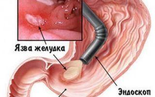 Фгс желудка (фиброгастроскопия): как делается?