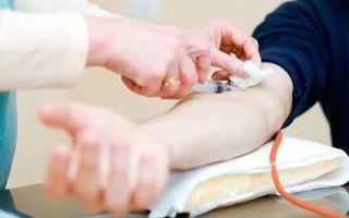Анализ крови на ттг: подготовка, расшифровка