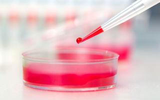 Гликированный гемоглобин: что показывает, что это такое, норма