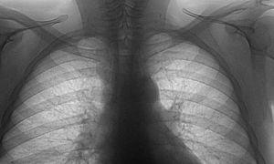 Пятно на легких при флюорографии: что это и стоит ли волноваться?
