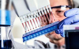 Расшифровка анализа крови ифа: что он показывает?