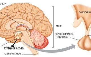 Мрт с контрастом: головного мозга, гипофиза, малого таза