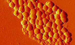 Лактобациллы в мазке: что это, норма
