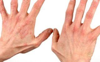 Низкий гемоглобин: [причины и последствия, как повысить]
