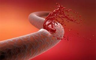 Сдвиг лейкоцитарной формулы влево и вправо: причины, показатели нормы