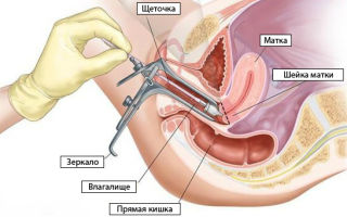 Мазок на флору при беременности: [норма, отклонение]