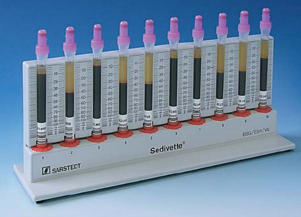 Анализ крови СОЭ: нормы, что означает, что делать если повышен?