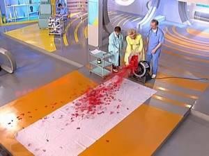 Норма тромбоцитов в крови у мужчин: таблица по возрастам, причины отклонения