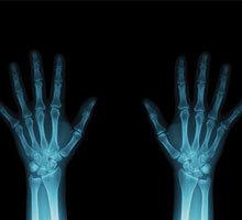 МРТ лучезапястного сустава и кисти руки