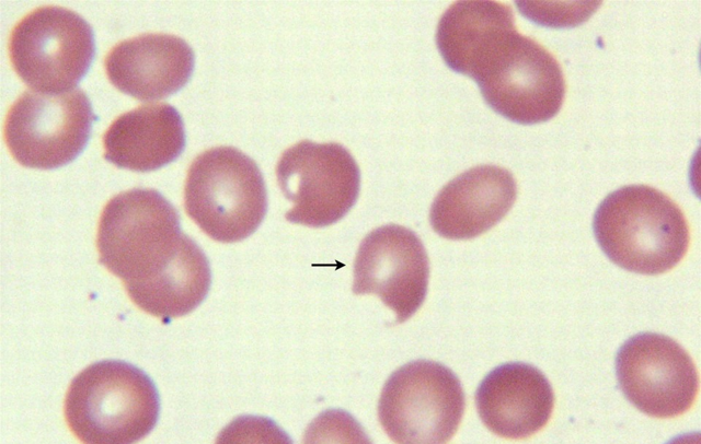 Причины пойкилоцитоза в общем анализе крови