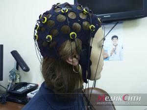 Электроэнцефалография мозга (ЭЭГ): что показывает, расшифровка показателей
