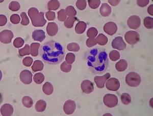 Нейтрофилы понижены у взрослого в крови: что это значит, причины