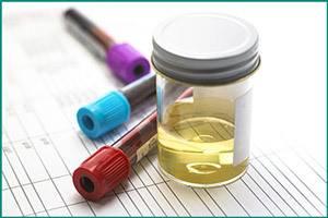 Экскреторная урография: подготовка пациента, как проводится?