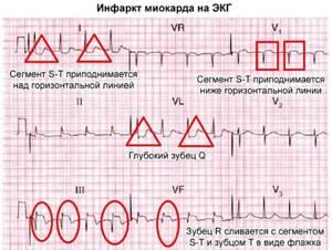 ЭКГ при инфаркте миокарда: признаки, фото, расшифровка
