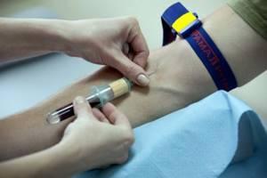 Гематокрит ниже нормы: что это значит, причины и лечение у взрослых