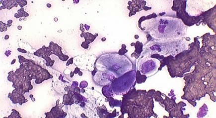 Анизоцитоз эритроцитов: что это такое, норма, причины повышения и понижения