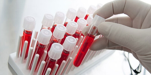 hcv и anti-hcv в анализе крови – что это?