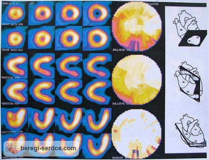 Сцинтиграфия миокарда: виды, противопоказания