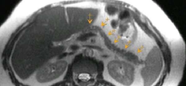 МРТ поджелудочной железы: подготовка, показания