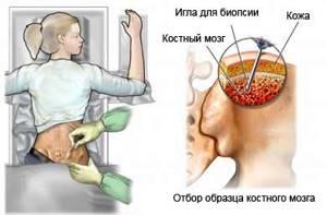 Пункционная биопсия: что это такое и как выполняется?