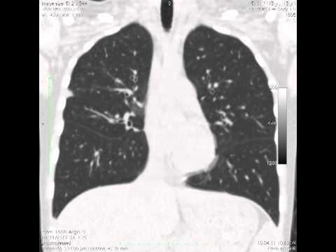 Компьютерная томография легких (КТ): что показывает и как часто делать?