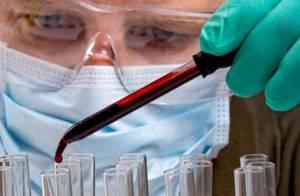 РМП в анализе крови – что это такое?