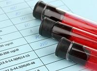 Фибриноген понижен: нормы, что это значит?
