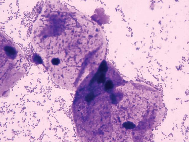 Коккобациллярная флора в мазке: что это такое, причины и лечение