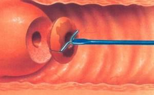 Биопсия шейки матки: как проводится, результаты, подготовка к процедуре