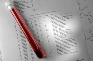 Что показывает биохимический анализ крови?