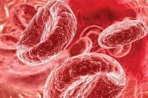 Как понизить гемоглобин в крови?