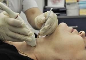 Биопсия лимфоузла: для чего и как проводится процедура?