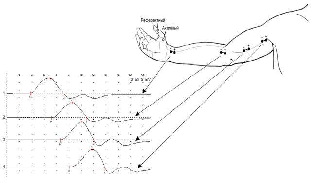 ЭНМГ электронейромиография конечностей [что дает обследование]