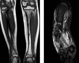 МРТ ноги – что показывает и зачем делают?