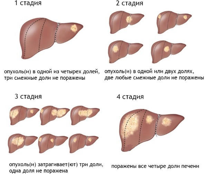 МРТ брюшной полости: что показывает, какие органы проверяют, как подготовиться?