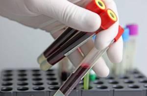 Откуда берут общий анализ крови у детей и у взрослых?