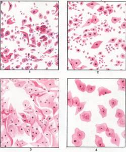 Эстрогенный тип мазка – что это значит?