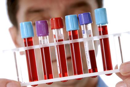 Анализ крови на паразитов – как называется?