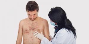 ПЛОХАЯ СВЕРТЫВАЕМОСТЬ КРОВИ: [болезнь, причины, лечение]