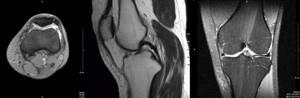 МРТ коленного сустава: что показывает и как проходит обследование?