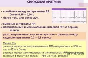 Что показывает ЭКГ сердца – видно ли на нем проблемы?